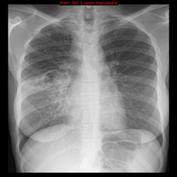 """SALUD-LABORAL.-""""En-la-Tuberculosis-de-origen-laboral-la-solidaridad-puede-empezar-por-uno-mismo""""-por-Victoria-Velasco.jpg"""